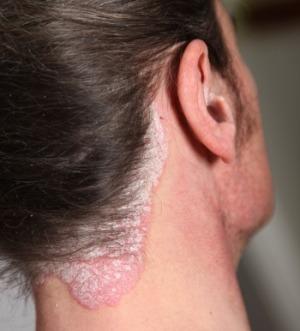 fül ekcéma kezelése jó orvosság a pikkelysömör és a gyors hatású