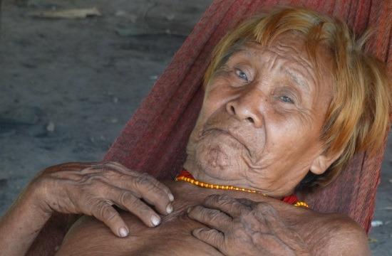 Az öreg sanema súlyos bőrbetegséggel küzd, amit akár a kosz is okozhat