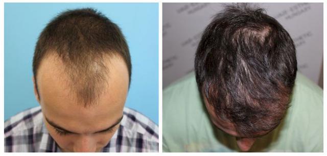 hajbeültetés hairhungary klinika hajbeültetés műtét harsányi gergely