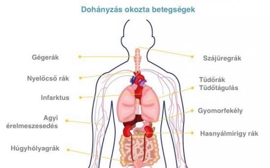 dohányzás okozta betegség