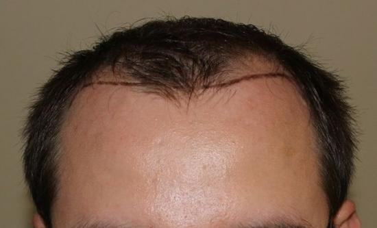 hajbeültetés kopaszodás hairhungary klinika hajbeültetés előtt