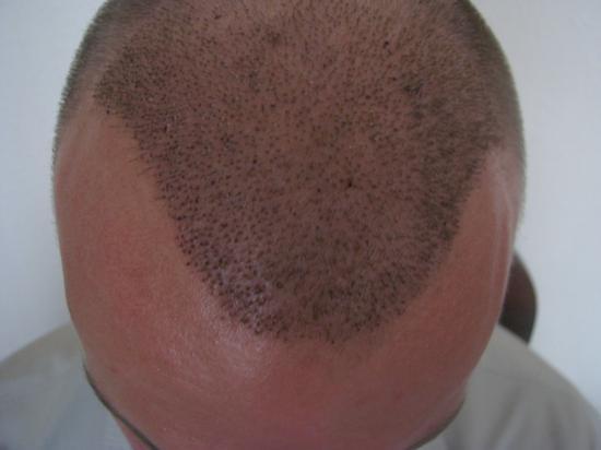 hajbeültetés hajátültetés hajbeültetés blog hajhullás kopaszodás harsányi gergely első kritikus hét műtét páciensek Szuper Levente