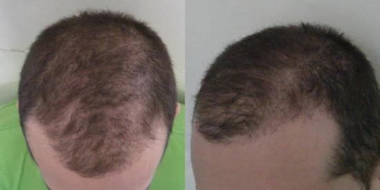 hajhullás hajbeültetés hajátültetés műtét páciensek hairhungary 3 hónap hajnövekedés hajbeültetés blog
