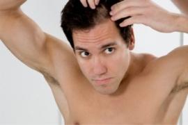 kopaszodás hajhullás hajátültetés hajbeültetés hairhungary kevesebb hajszál hajritkulás tarság kopasz fej nagy változás