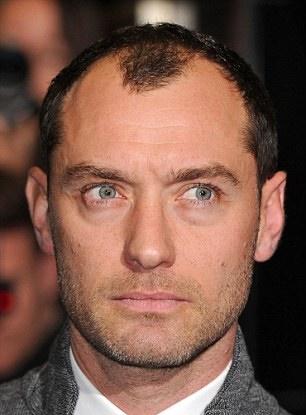 hajhullás kopaszodás hajátültetés hajbeültetés hairhungary jude law színész filmsztár homlokvonla frizura